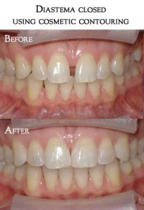 tooth contouring2